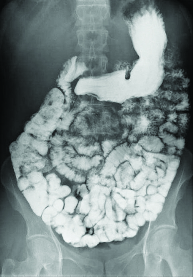 This figure contains one image. A black and white abdominal x-ray image is shown in which the intestinal tract of a person is clearly visible in white.