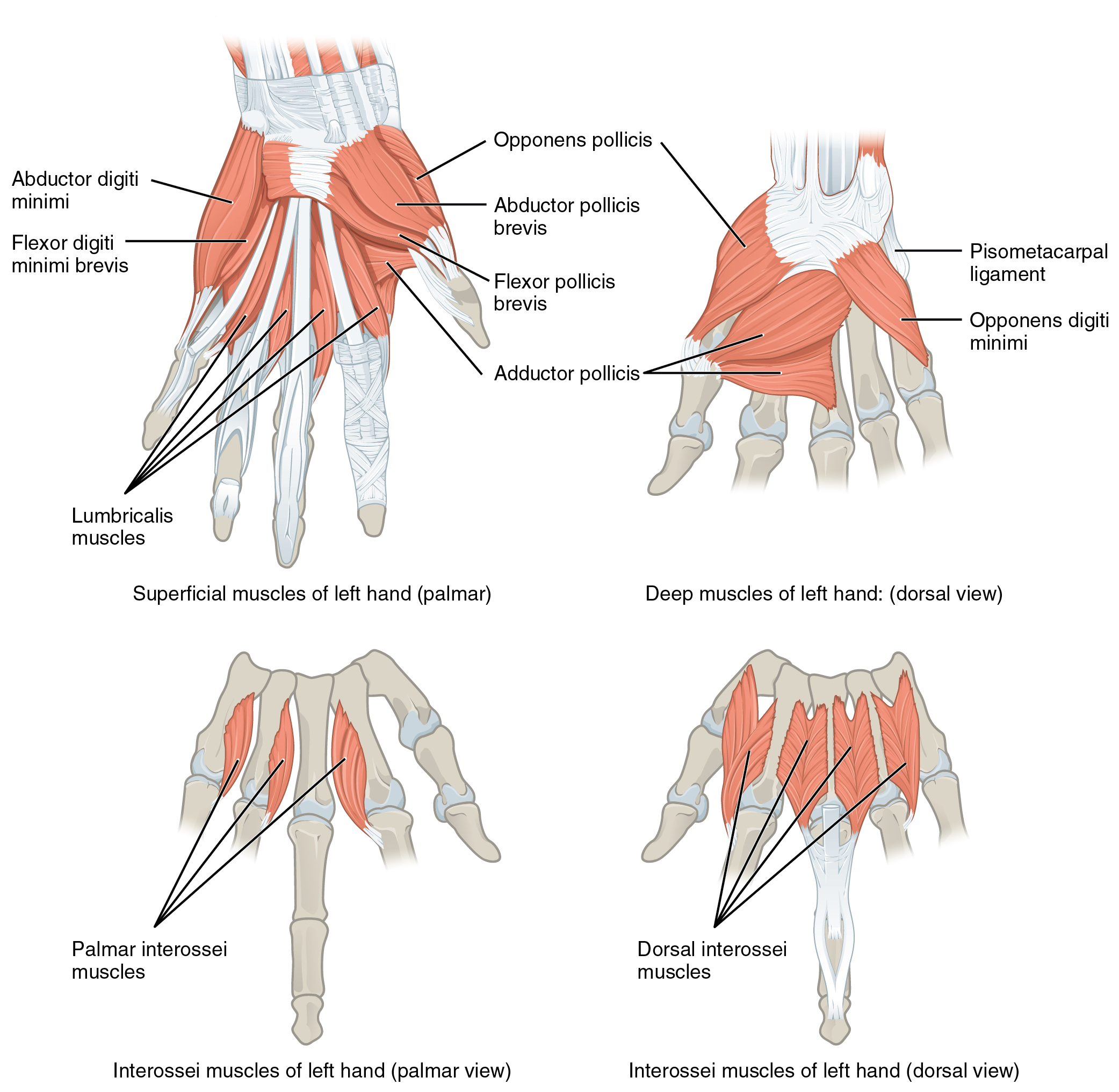 This multipart figure shows the intrinsic muscles of the hand with the major muscle groups labeled.