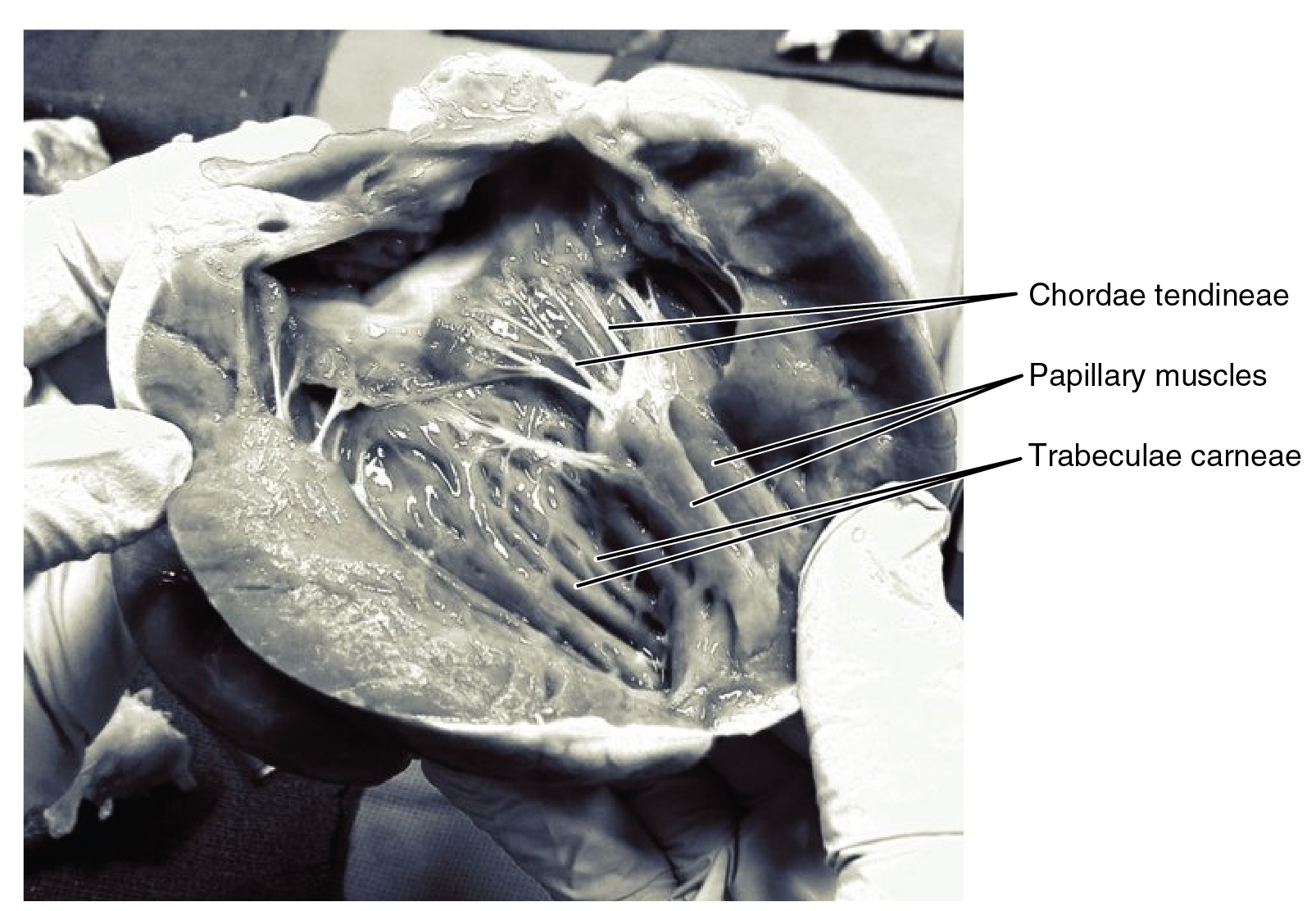 This photo shows the inside of the heart with the main muscles labeled.