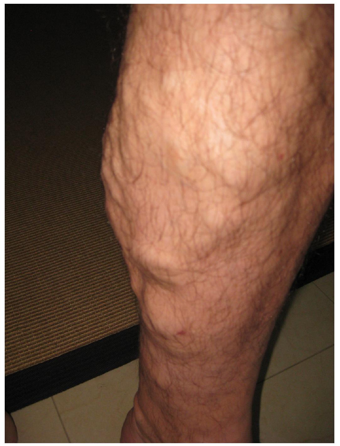 This photo shows a person's leg.