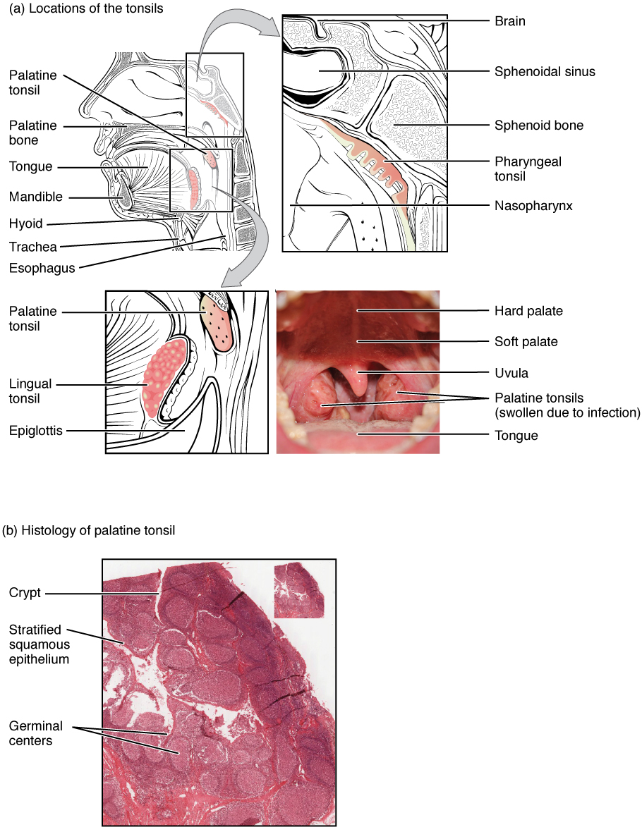 The top panel of this image shows the location of the tonsils. All the major parts are labeled. The bottom panel shows the histological micrograph of the tonsils.