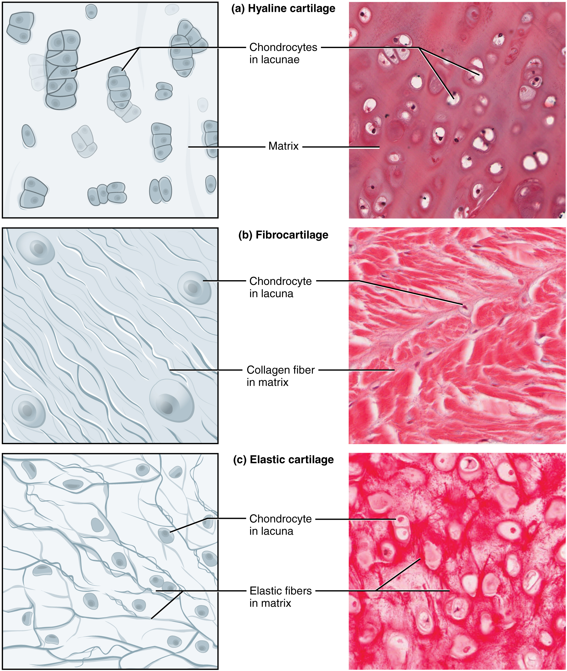 Part A of this diagram is a drawing and a micrograph of hyaline cartilage. The cartilage contains chondrocytes encapsulated in lacunae. Several of the lacunae are joined into groups or small stacks and embedded in the surrounding matrix. The micrograph shows the lacunae as white rings surrounding the purple staining chondrocytes. Some occur as joined pairs while others are embedded singly within the pink staining matrix. Image B shows a diagram and a micrograph of fibrocartilage that contains many fine collagen fibers embedded in the matrix. The collagen fibers are roughly parallel to each but run through the matrix in a wavy fashion. There are also four round chondrocyte cells embedded within the matrix. In the micrograph, the matrix is shaded red and the collagen fibers are visible in white. The lacunae are clearly visible as a faint purple ring containing several dark purple chondrocytes. Part C shows a diagram and micrograph of elastic cartilage. In the diagram, fine elastic fibers are seen crisscrossing the matrix. Many of the elastic fibers branch off from each other, unlike the collagen fibers depicted in parts A and B. The lacunae are clearly visible as white rings containing stained chondrocytes. The fibers stain deeply in this micrograph and can been seen crisscrossing through the tissue.