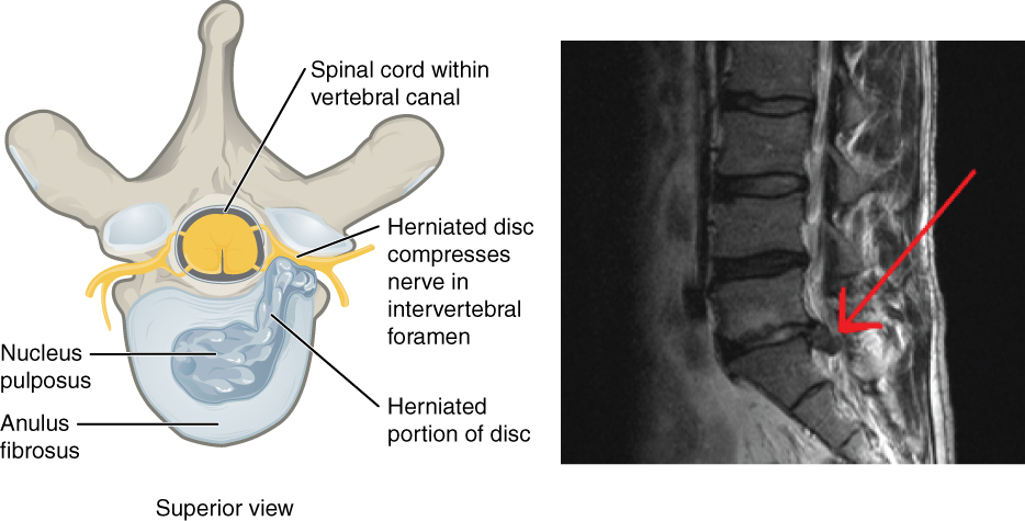 This figure shows a herniated disk. The left panel shows the superior view highlighting how the herniated disk compresses the nerve. The right panel shows a photograph of a herniated disk.