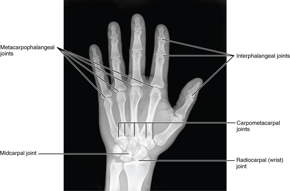 This image shows a radiograph of a human hand.